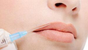 relleno facial clinica giuliani
